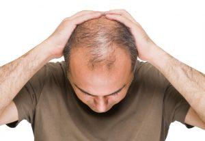 شیوه جدید درمان ریزش مو