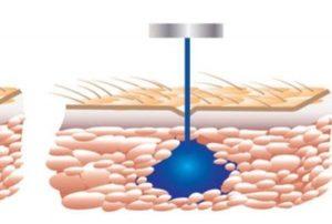 انتقال دارو به بدن با دستگاه تزریق بدون درد در نیم ثانیه
