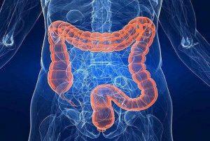 غذاهایی که ریسک ابتلا به سرطان روده را افزایش می دهند