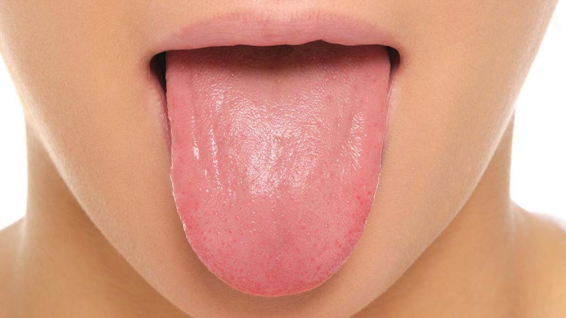 تغییر رنگ زبان نشانه کدام بیماریهاست؟
